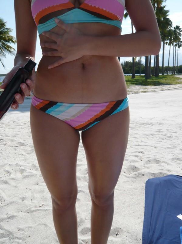 bikini lady creepshot pics